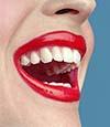 Albirea dintilor iti ofera un zambet stralucitor
